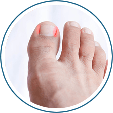 Rochester Podiatry - Foot Doctor Brighton, Greece and
